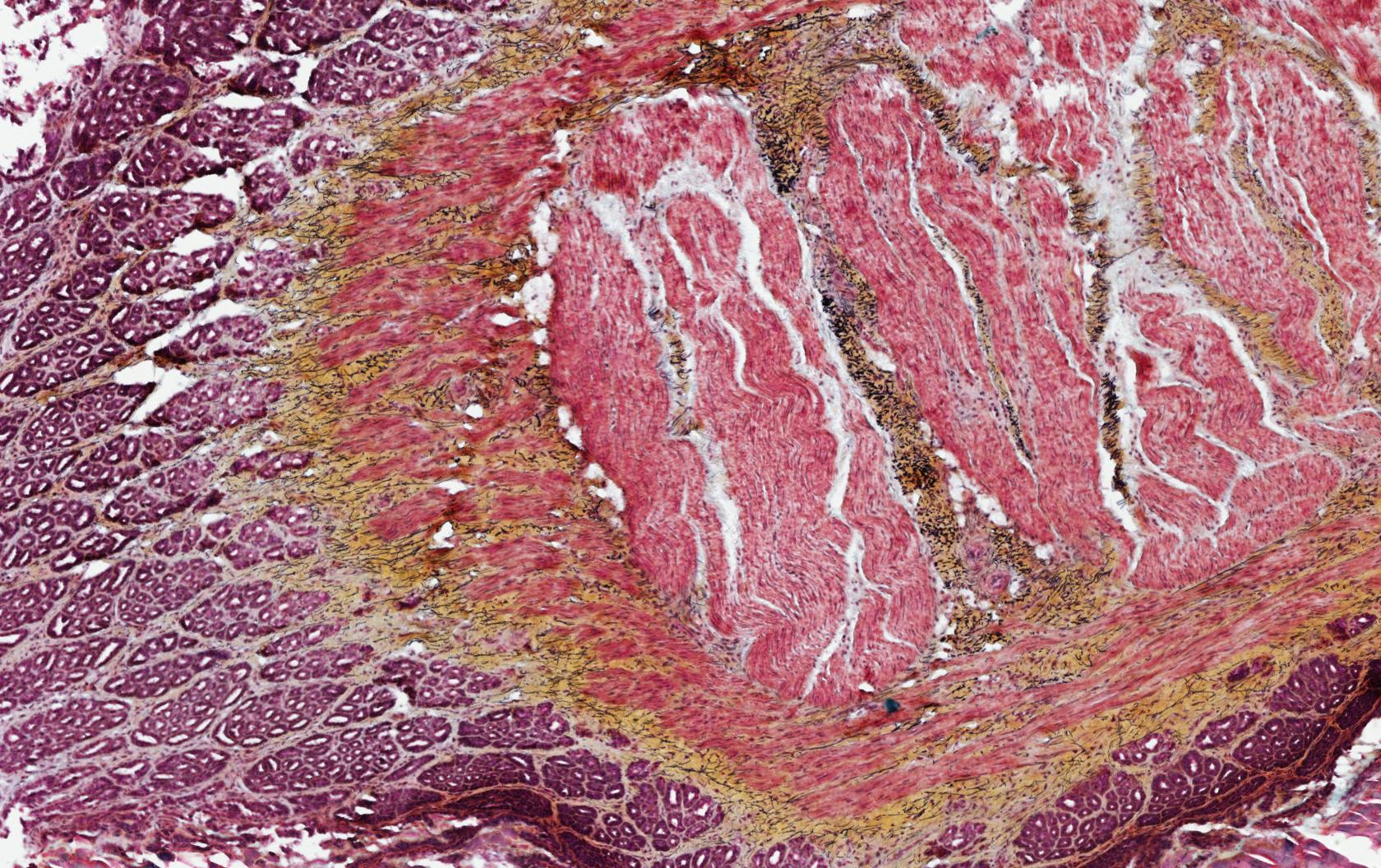 ALTHISIA movat pentachrome 5