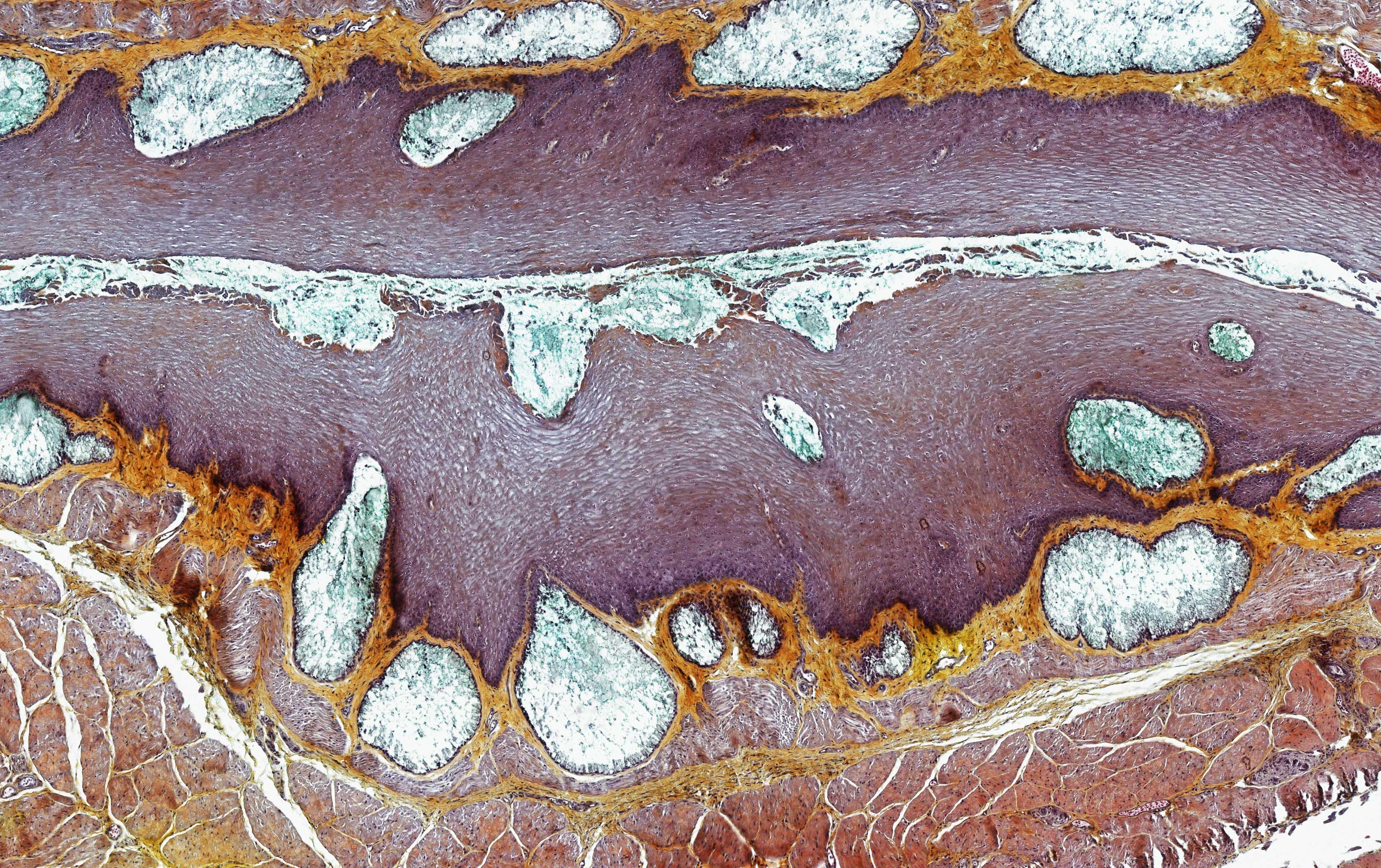 ALTHISIA movat pentachrome 11