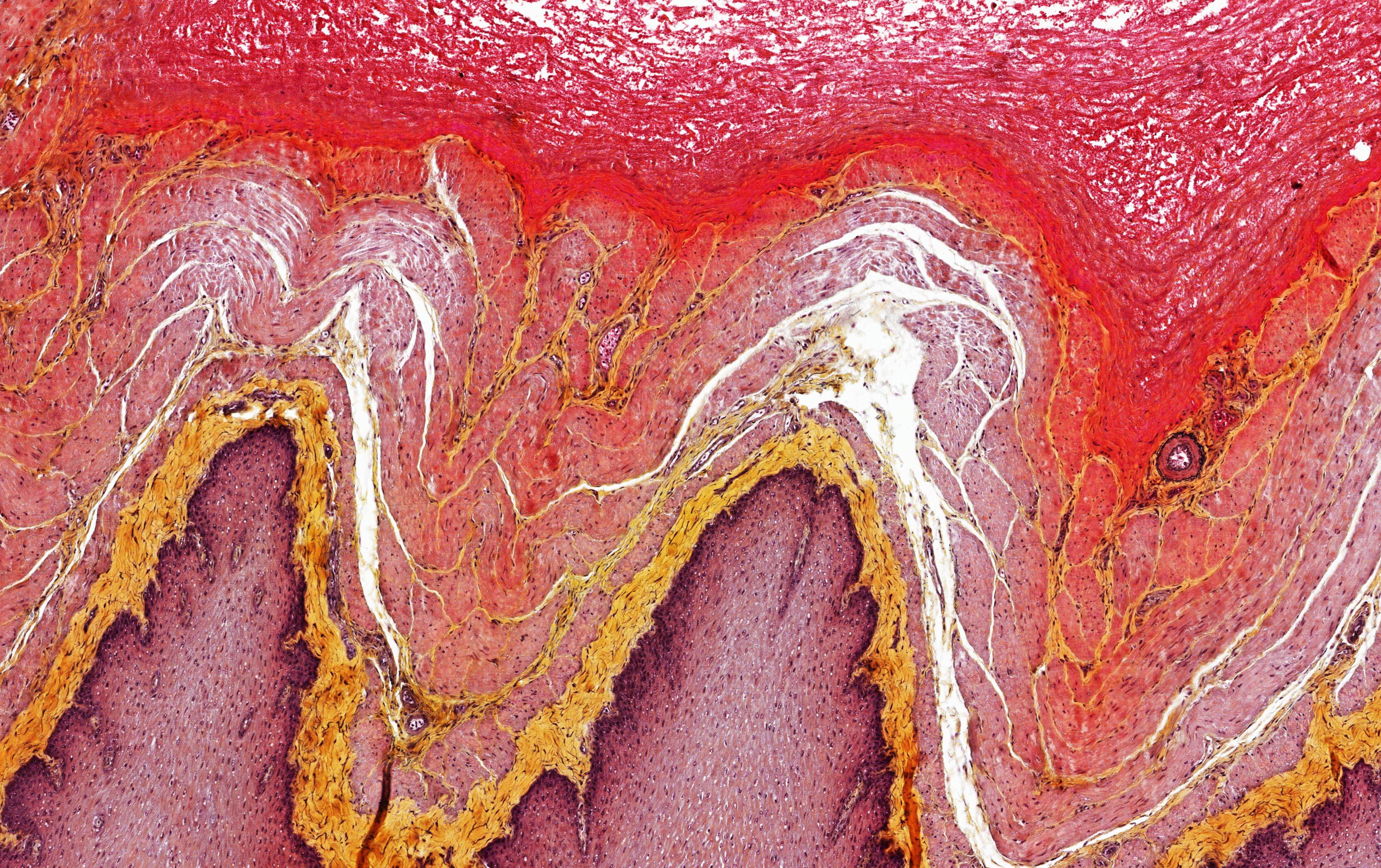ALTHISIA movat pentachrome 2