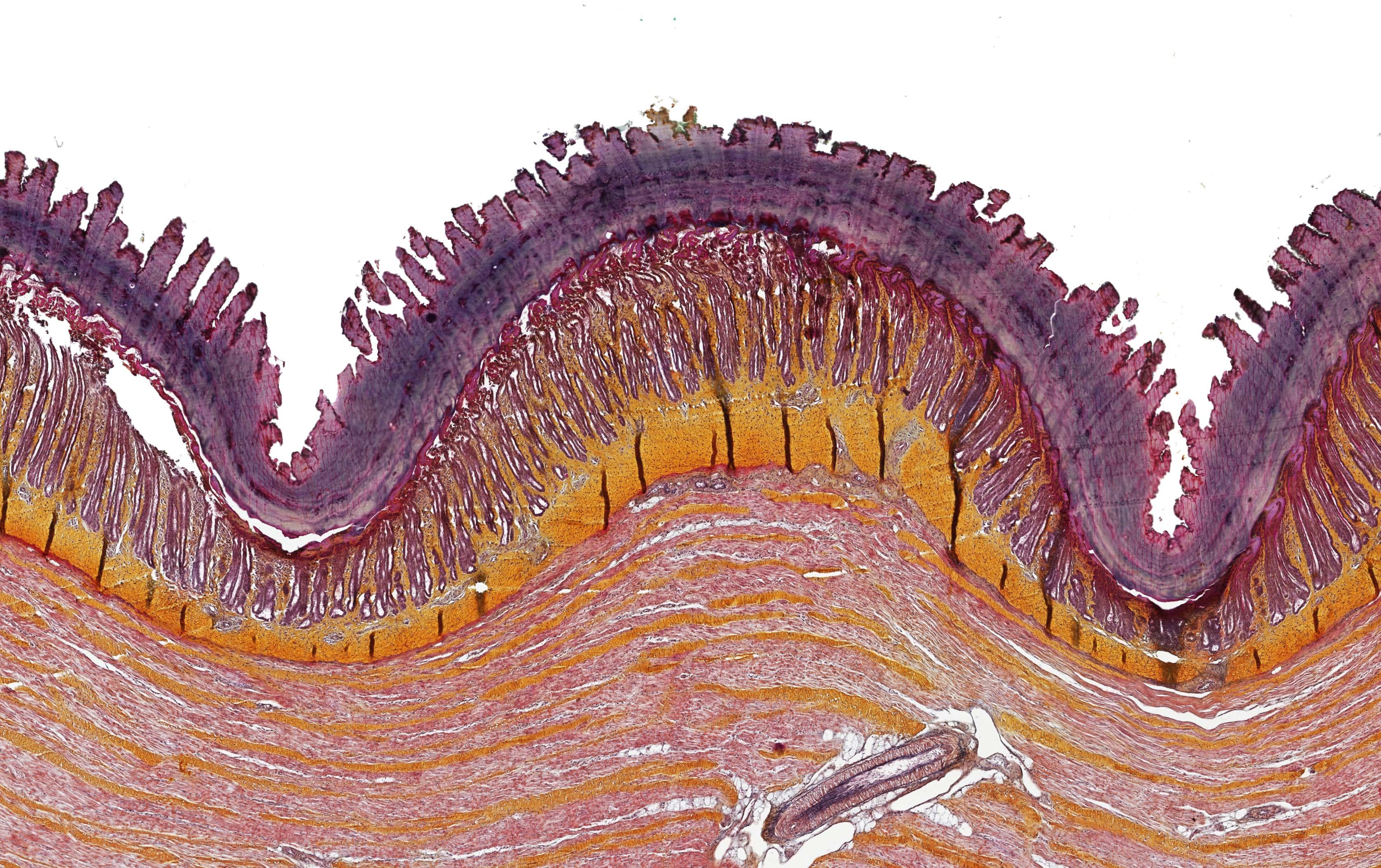 ALTHISIA movat pentachrome 10