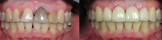 Y2K Dentistry Before and After Porcelain Crowns to Cosmetically Enhance The Smile After Root Canal Discolored The Tooth. What a great smile!