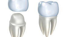 Y2K Dentistry Of Sherman Oaks Announces Porcelain Crowns For Just $695!
