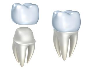 Y2K Dentistry Of Sherman Oaks Announces Porcelain Crowns For Just $695!