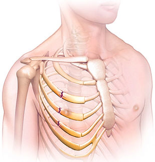 broken-ribs-illustration.jpg
