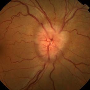 Зачем неврологу глазное дно? давление глазного дна? Навролог направил к окулисту