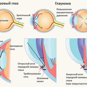 Что за зверь такой - глаукома?