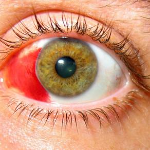 Лопнул сосуд в глазу: Субконъюнктивальное кровоизлияние