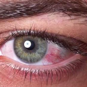 Коронавирусный конъюнктивит. Может ли Covid-19 поражать глаза?