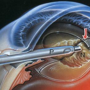 Что нельзя делать после операции на глазах по устранению катаракты