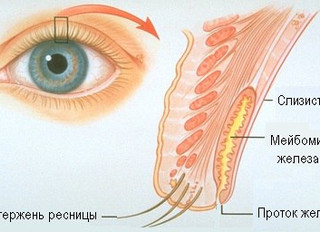Как безопасно ухаживать за ресницами и бровями? Увеличение ресниц без вреда, мнение врача