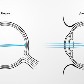 Как лечить дальнозоркость(гиперметропию)?