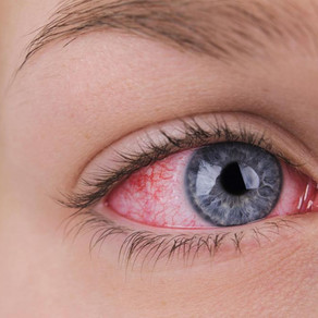 Хорошие капли для глаз от усталости и покраснения