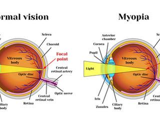 Близорукость? Как остановить падение зрения? Миопия и все о ней