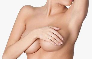 aumento-mamas-preguntas-750x480.jpg