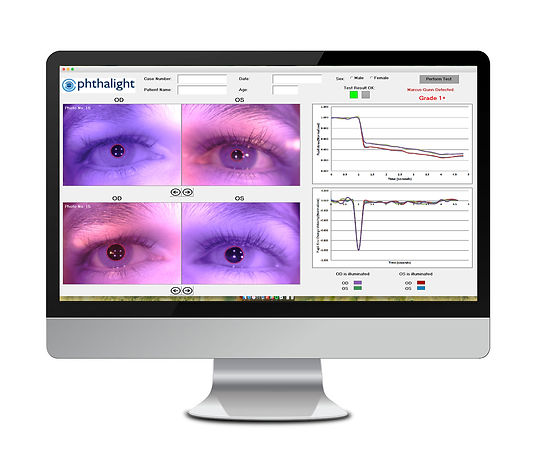 O-Glass Software - Accurate Pupil Reaction Monitoring - Ophthalight Digital Solutions