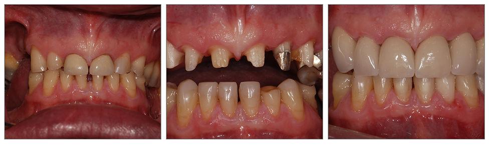 Remplacement de dents