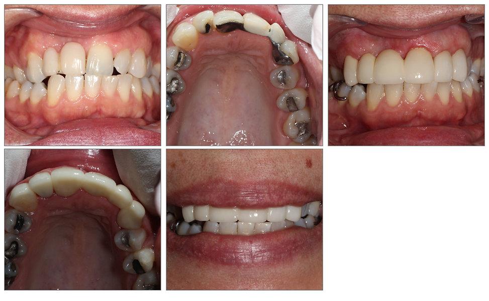 Alignement des dents