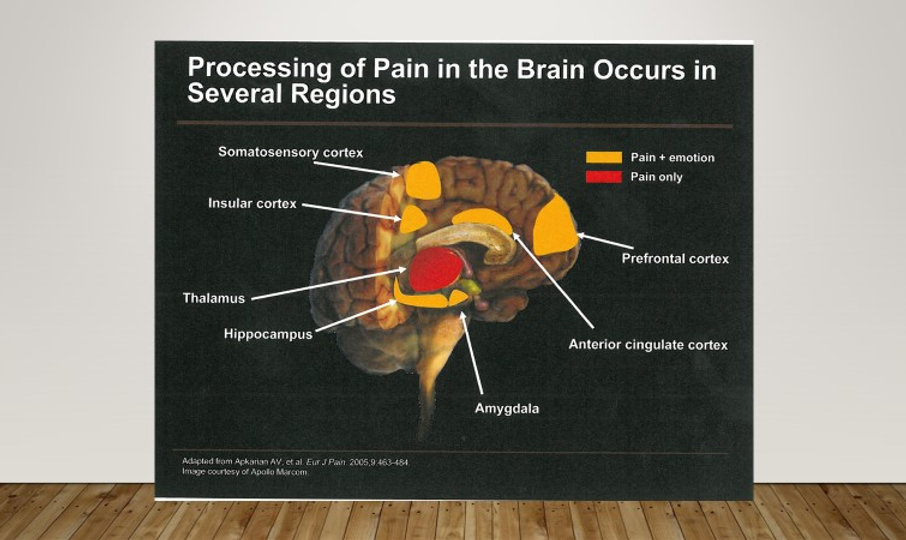 brain BAPM.jpg