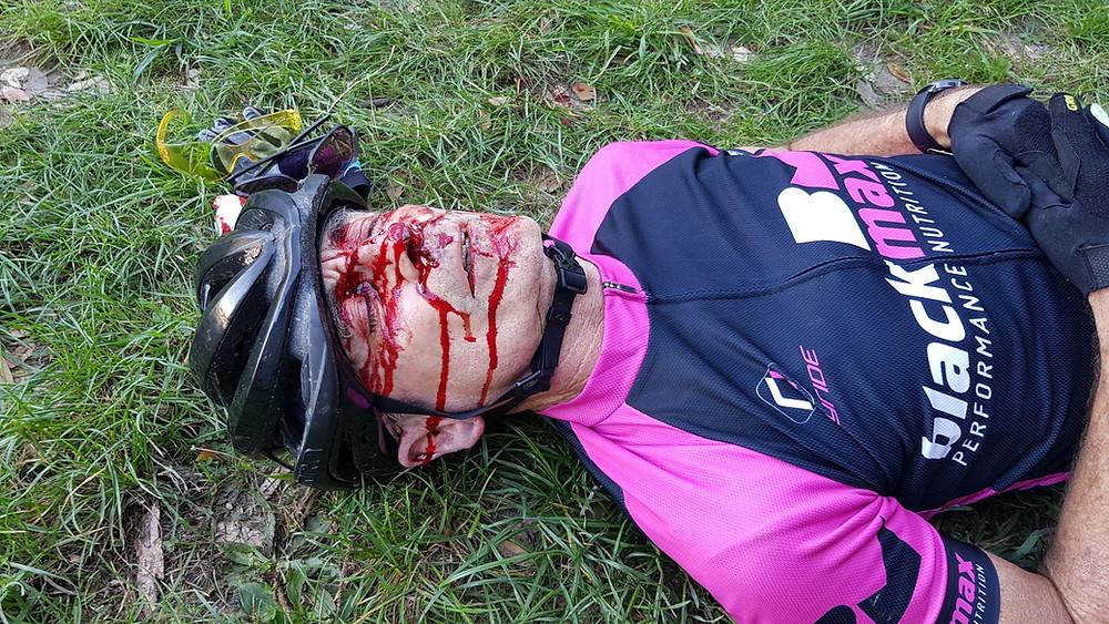 Gary Lying injured