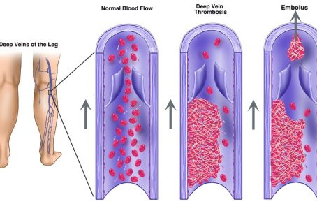 How to Prevent Deep Vein Thrombosis (DVT) in Athletes and Traveling Sports Teams