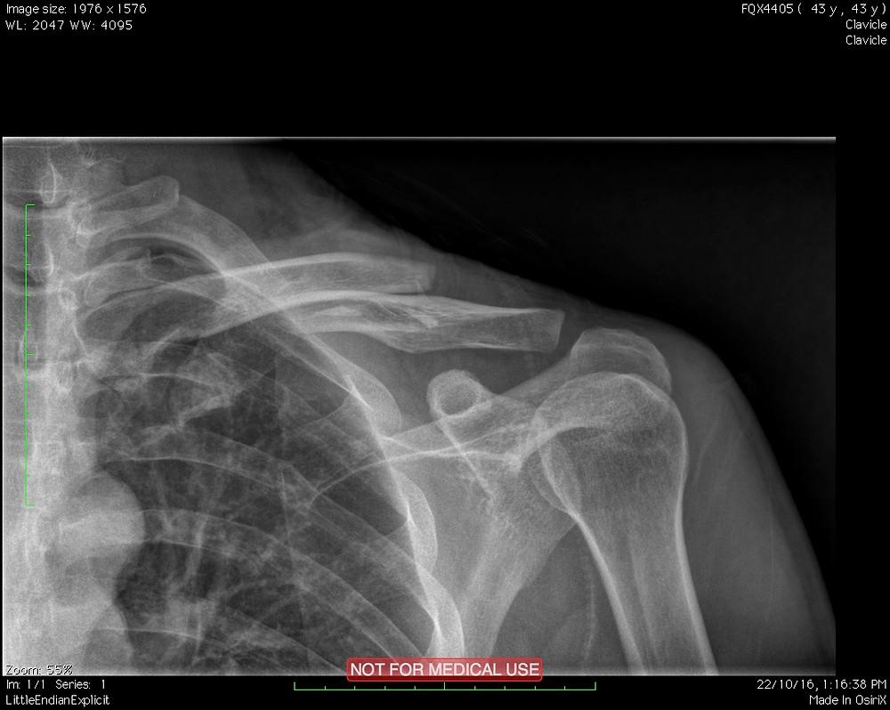 Derek's broken shoulder