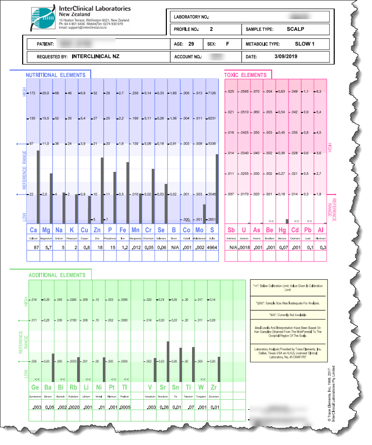 Diagnosis: Rheumatoid Arthritis. High Fe/Cu ratio