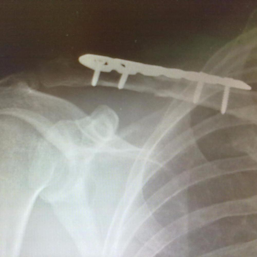 Marco's shoulder post surgery
