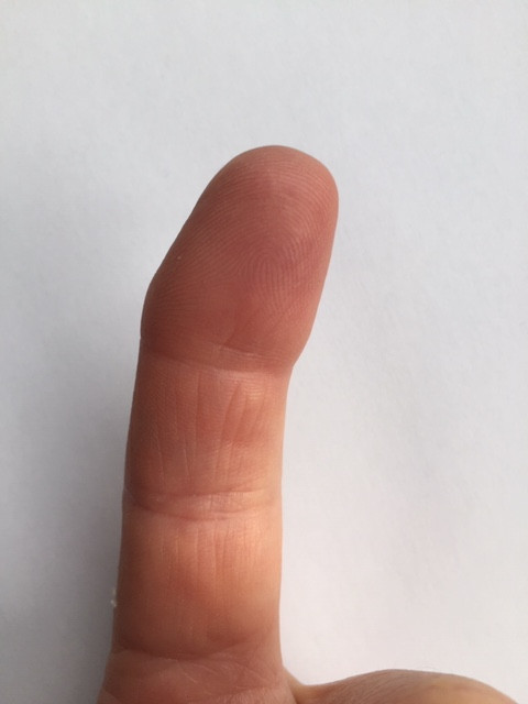 The joint deformity typically caused by RA