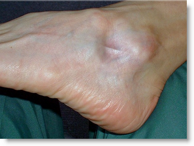 Heel Spurs - Is There Any Danger in One Cortisone Shot to Each Heel?