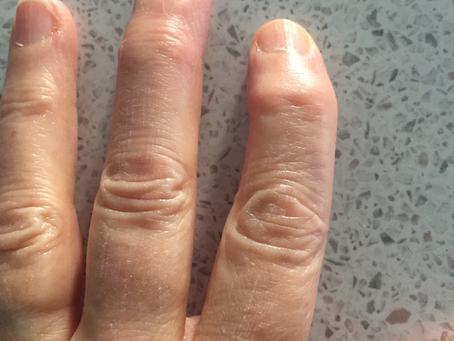 How Rheumatoid Arthritis Presents on HTMA