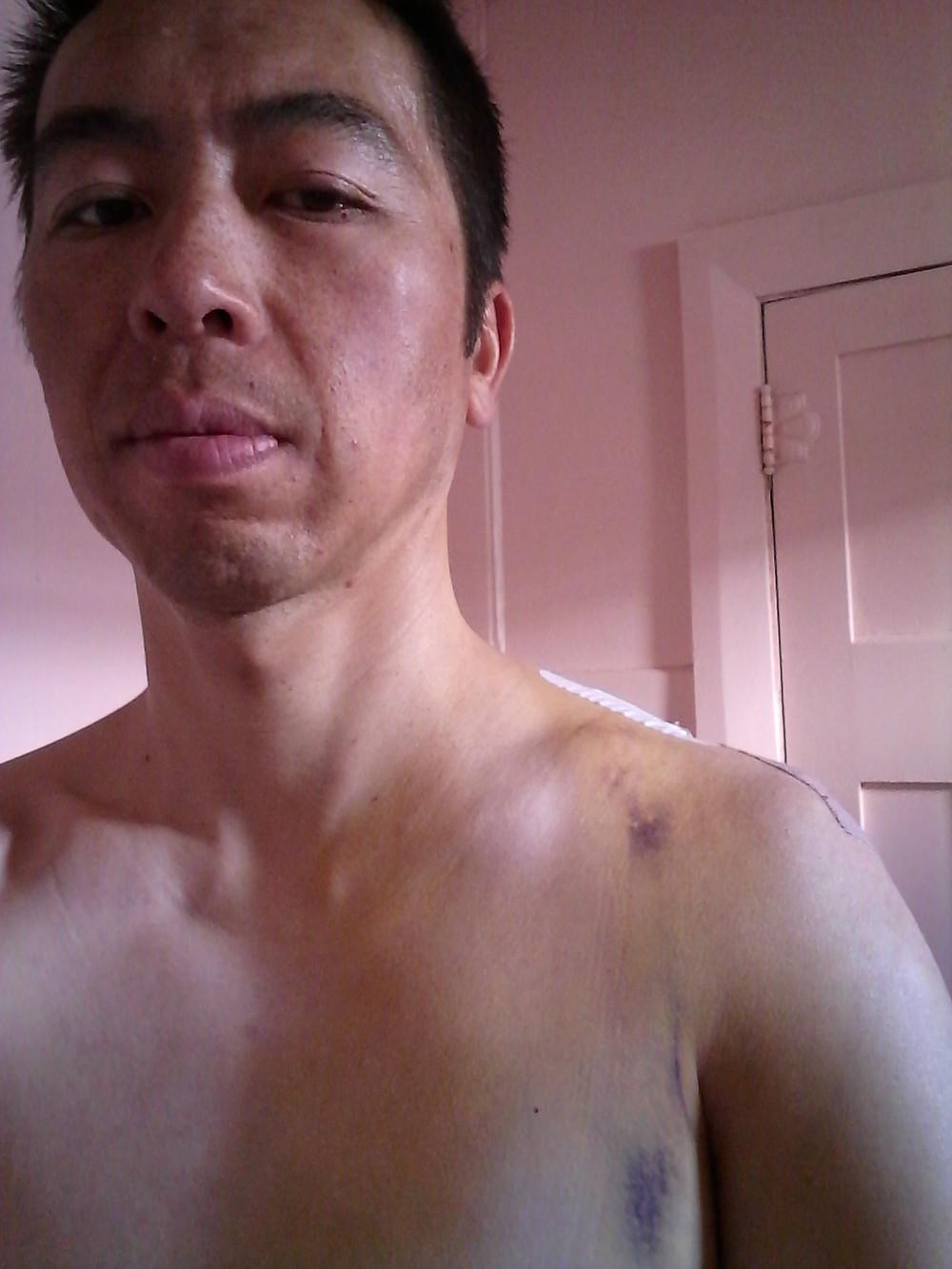 Nice bruising but healing well!