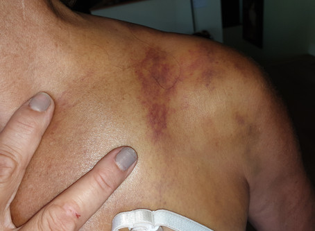 Collarbone injury in Mountain Biking