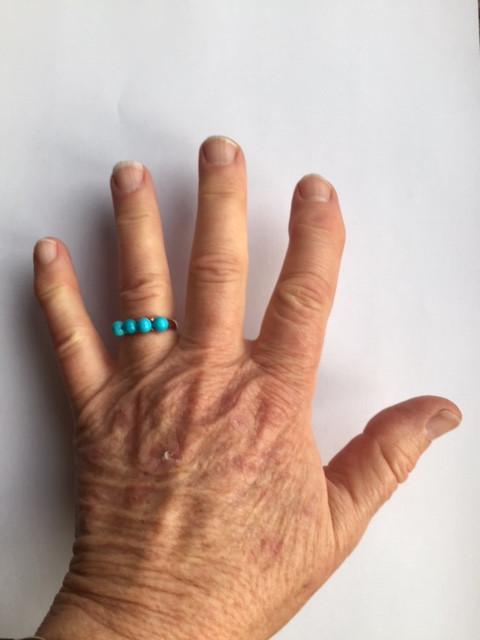 Fingers showing joint degeneration