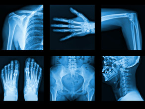 Is upgrading to digital radiography really better than film radiography?