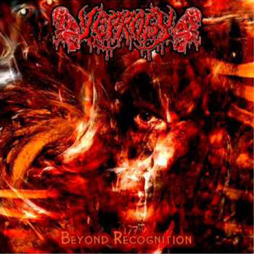 "Leprosy ""Beyond Recognition"" 2005"