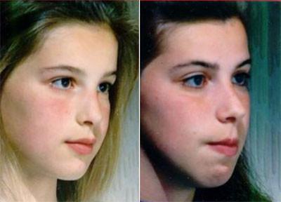 Her ser dere 2 søstre, Kelly til venstre og Samantha til høyre. Når de var 7 og 8,5 år fikk de hjelp av Dr. Mike Mew til å lære å puste igjennom nesen og svelge korrekt. Kelly tok dette med en gang, men Samatha fortsatte å holde munnen åpen. Det som er interesant å se her er hvordan ansiktene deres ble veldig forskjellige pga puste- og svelgevanene. Det er også Synelig å se at Samantha har mye spenninger rundt munnen når hun prøver å holde leppene igjen.