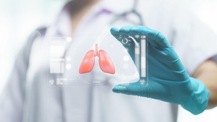 CBR Hospitals Respiratory .jpeg