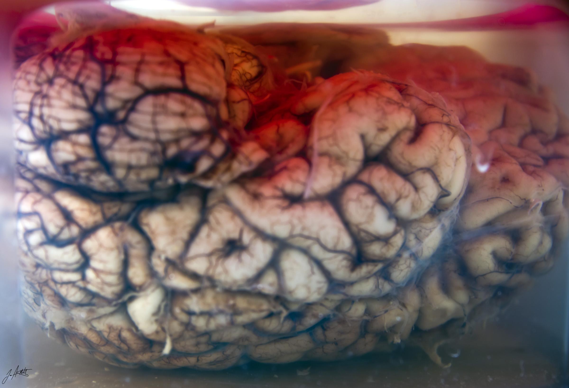 Day303_left brain_October30