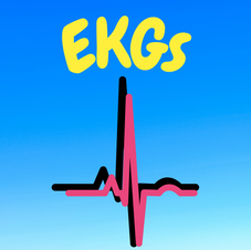 33:02 - Intermediate How do EKGs work and what can they tell us?