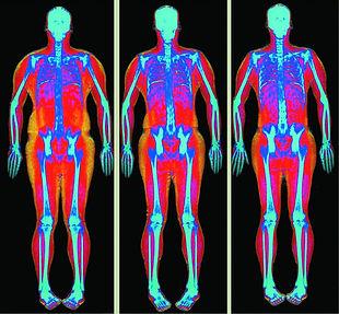 Body fat analysis DEXA