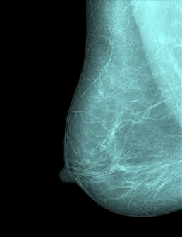 Mammogram x-ray imaging for breast cance