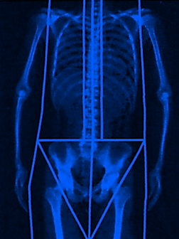 DEXA Bone density