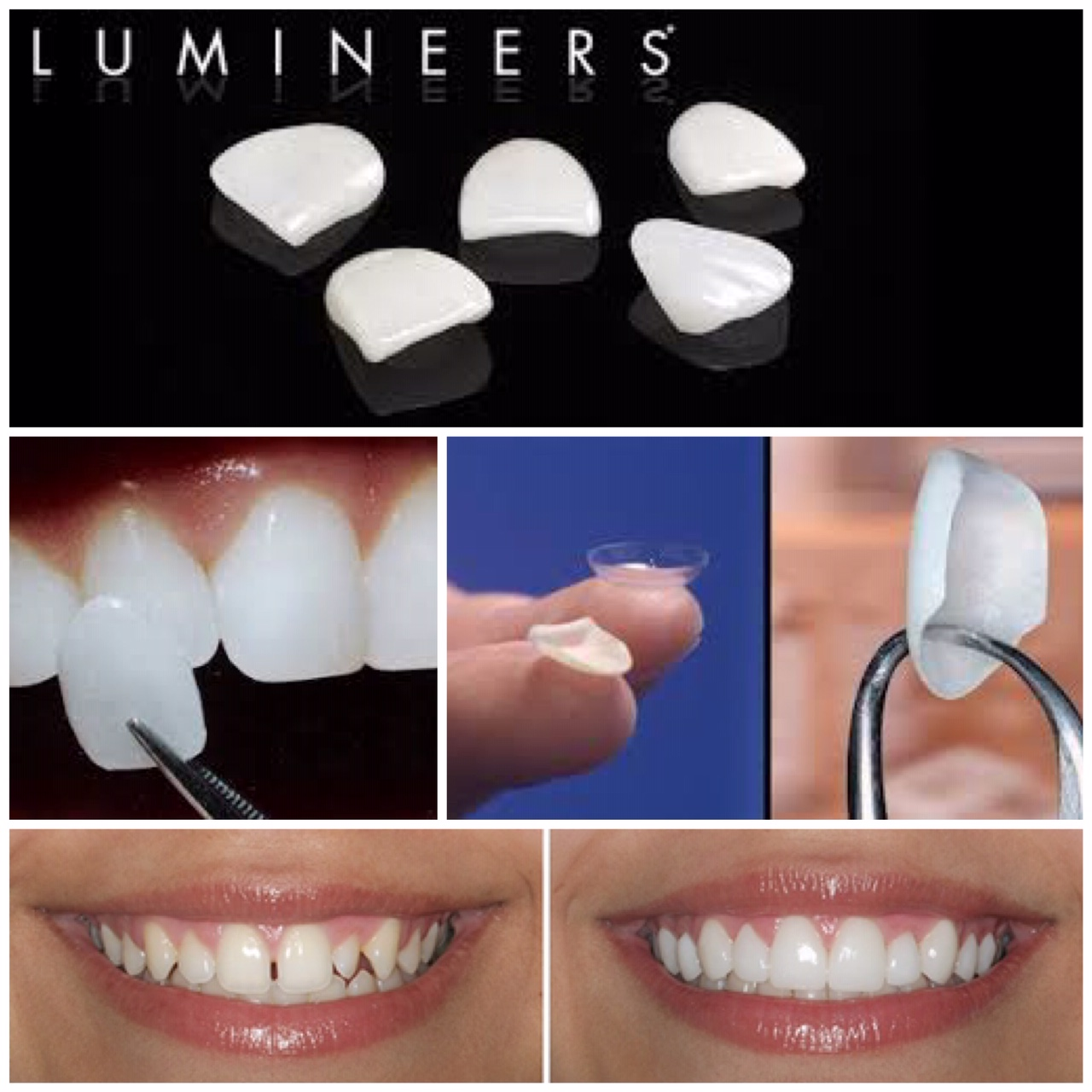 LUMINEERS