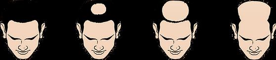 Type O Hair Loss.png