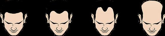 Type M Hair Loss.png
