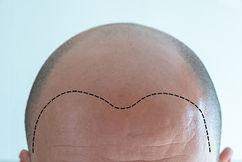 FUE Hair Transplant Example.jpg
