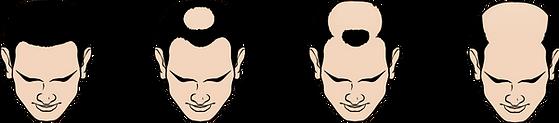 Type O+M Hair Loss.png