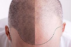FUE Hair Transplant Example 2.jpg