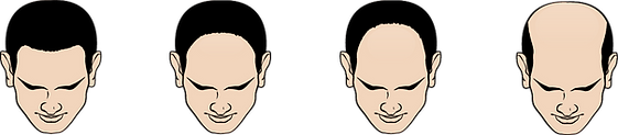 Type A Hair Loss.png