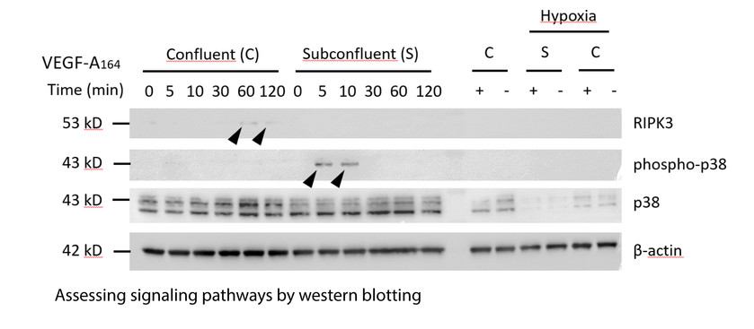 Assessing signaling pathways by western blotting